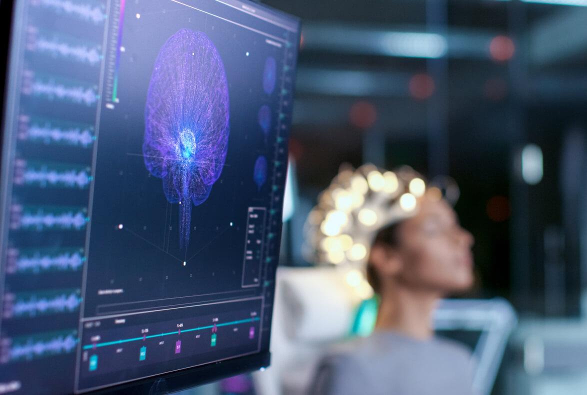 Neuroderechos: ¿Ciencia ficción o ciencia actual?